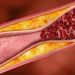 Атеросклероз препараты купить, профилактика, симптомы атеросклероза
