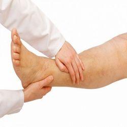 Атеросклероз сосудов нижних конечностей препараты купить, профилактика