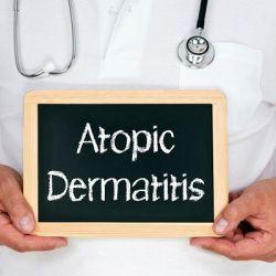 Атопический дерматит препараты купить, профилактика, симптомы