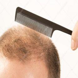 Выпадение волос препараты купить, профилактика, симптомы