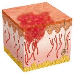 Геморрагический васкулит препараты купить, профилактика, симптомы