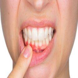Гингивит препараты купить, профилактика, симптомы гингивита