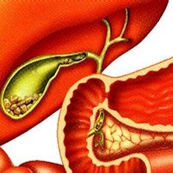 Желчекаменная болезнь препараты купить, профилактика, симптомы