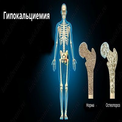 Гипокальцемия