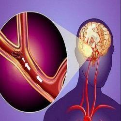 Нарушение кровообращения мозга препараты купить, профилактика симптомы