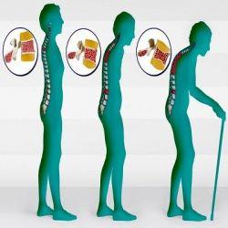 Остеопороз препараты купить, профилактика, симптомы остеопороза