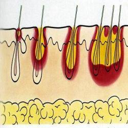 Пиодермия препараты купить, профилактика, симптомы пиодермии