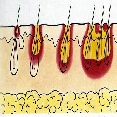 Пиодермия