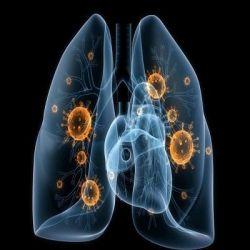 Пневмония препараты купить, профилактика, симптомы пневмонии