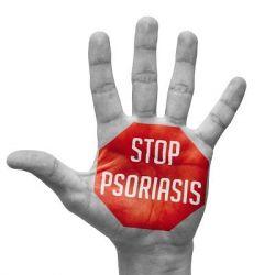 Псориаз препараты купить, профилактика, симптомы псориаза