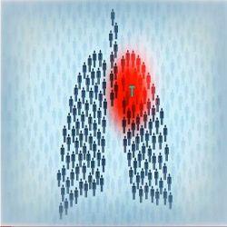 Туберкулёз препараты купить, профилактика, симптомы туберкулёза