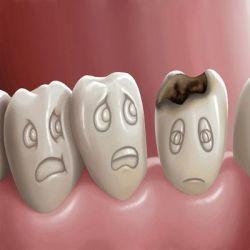 Кариес зубов препараты купить, профилактика, симптомы кариеса зубов