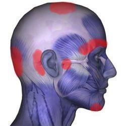 Болезни головы препараты купить, профилактика, симптомы болезни головы