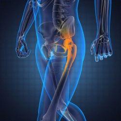 Болезни костно-мышечной системы препараты купить, профилактика